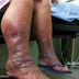 Analysis, treatment, and counteractive action of lymphatic filariasis