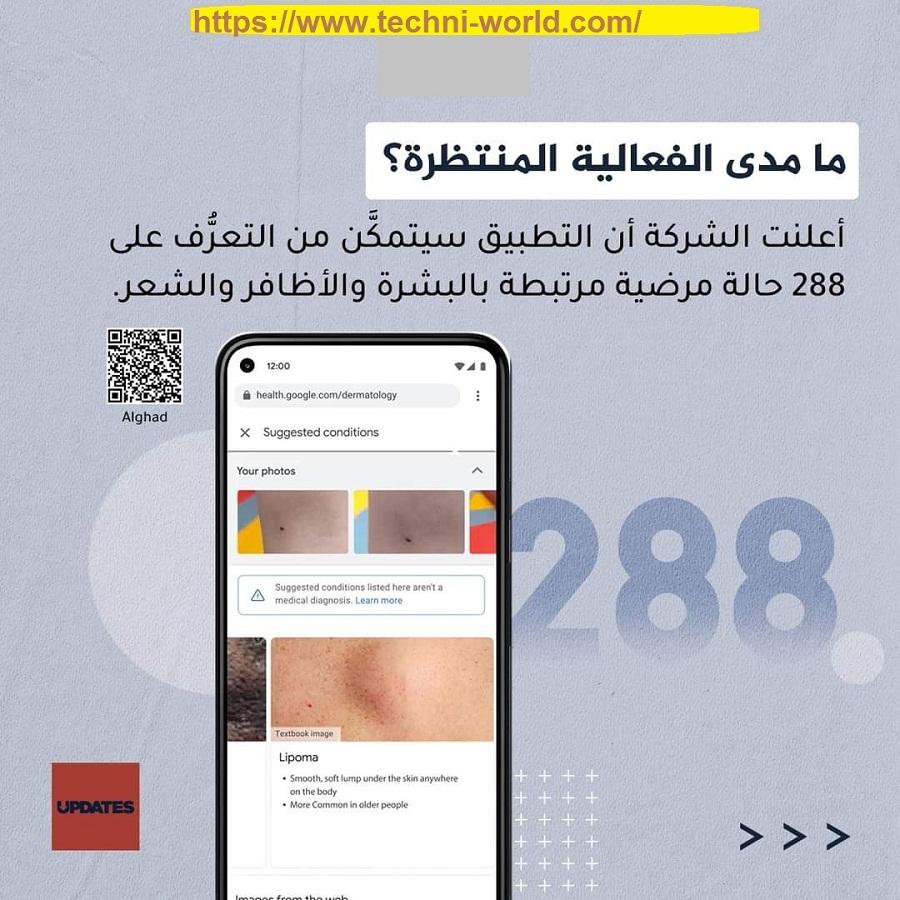 Google تطلق تطبيقا لاكتشاف أمراض الجلد