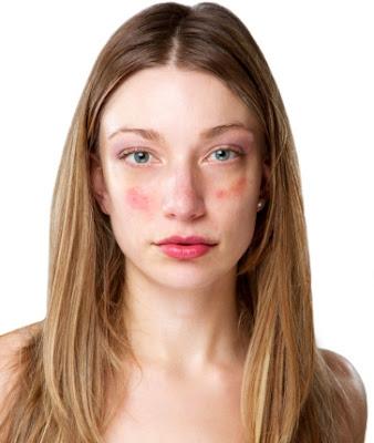 skin disease face