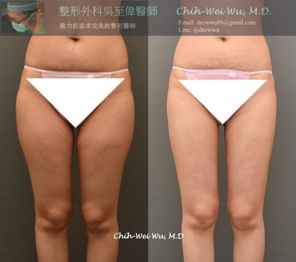 令人非常討壓馬鞍肉,與大腿內側卡卡的肥肉,抽脂後都得到非常顯著的改善