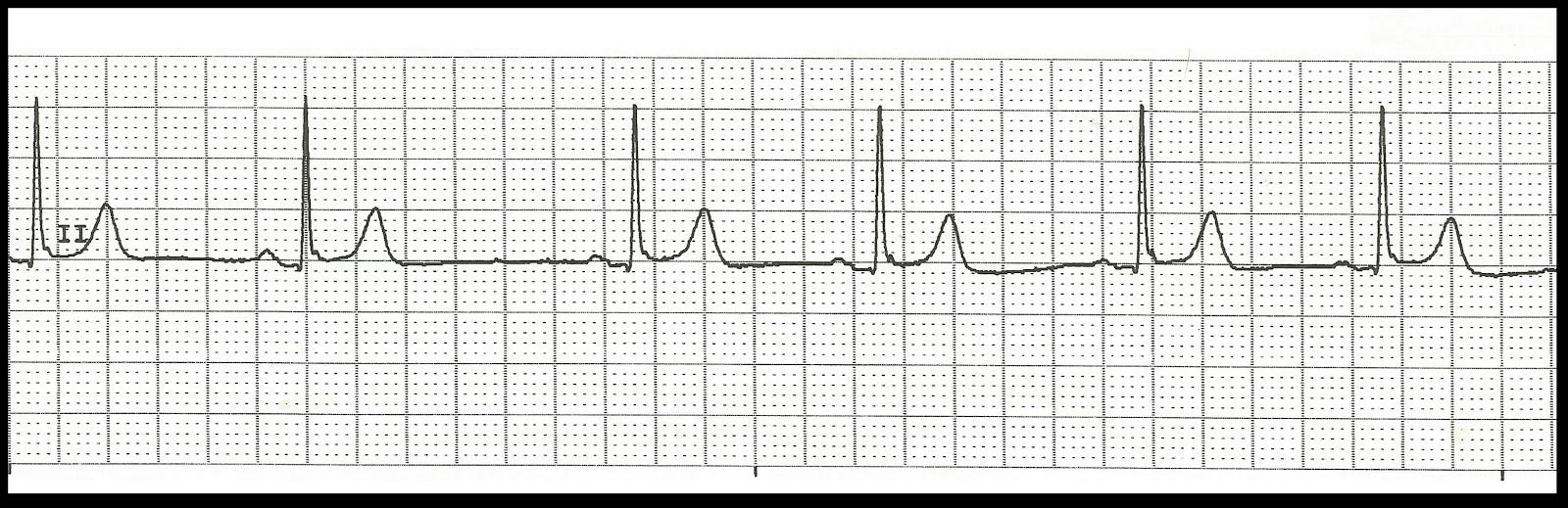 Float Nurse Practice EKG Rhythm Strips 155