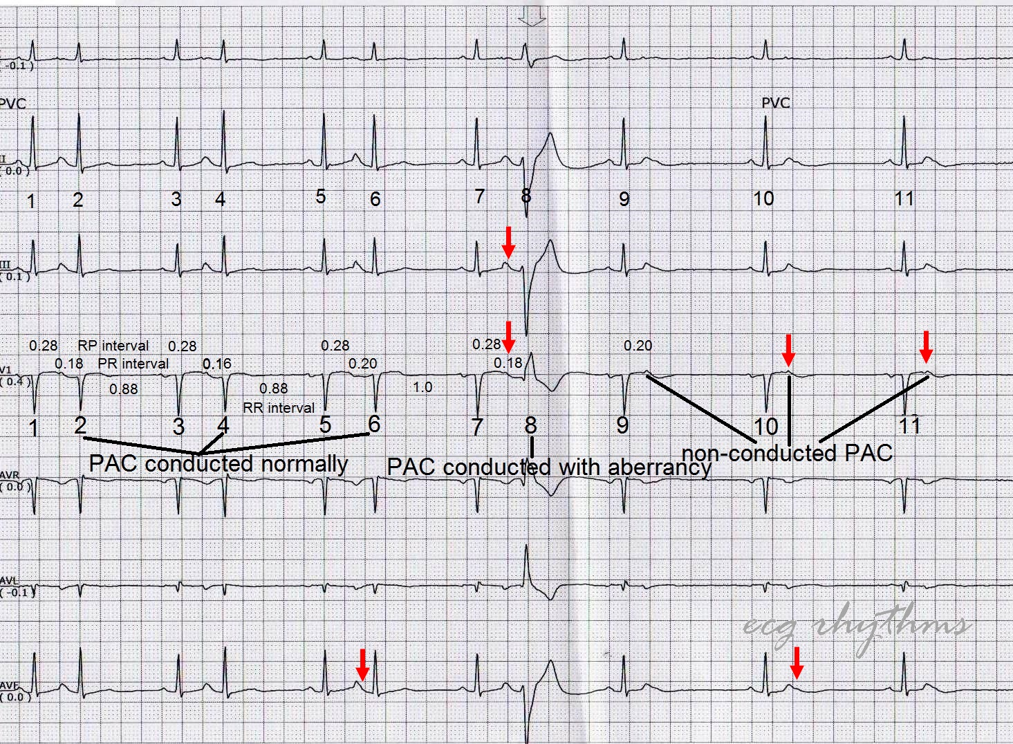 Ecg Rhythms Mastering Ecg Interpretation In Telemetry