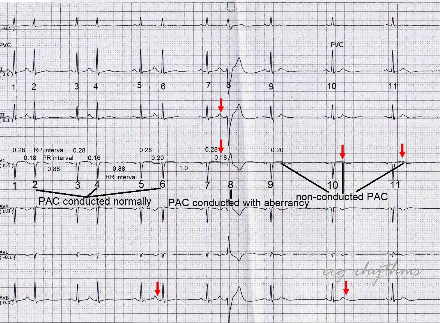 Ecg Rhythms Mastering Ecg Interpretation In Telemetry