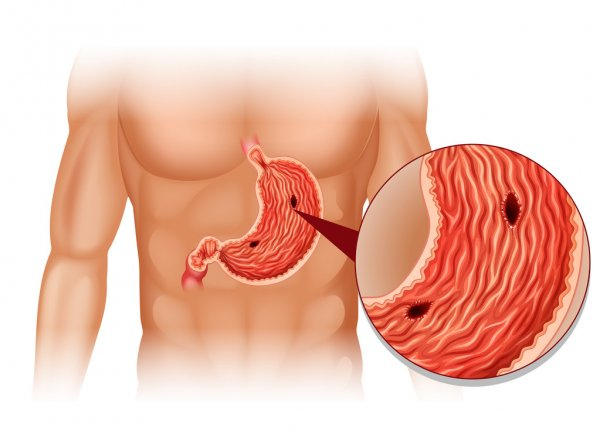Tips to control peptic ulcer disease