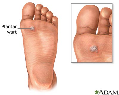 plantar wart pictures plantar warts treatment