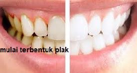 Plak merupakan adonan kuman dari sisa masakan beserta zat dari kuman tersebut yang  gobekasi 5 Kebiasaan yang Menyebabkan Plak Gigi