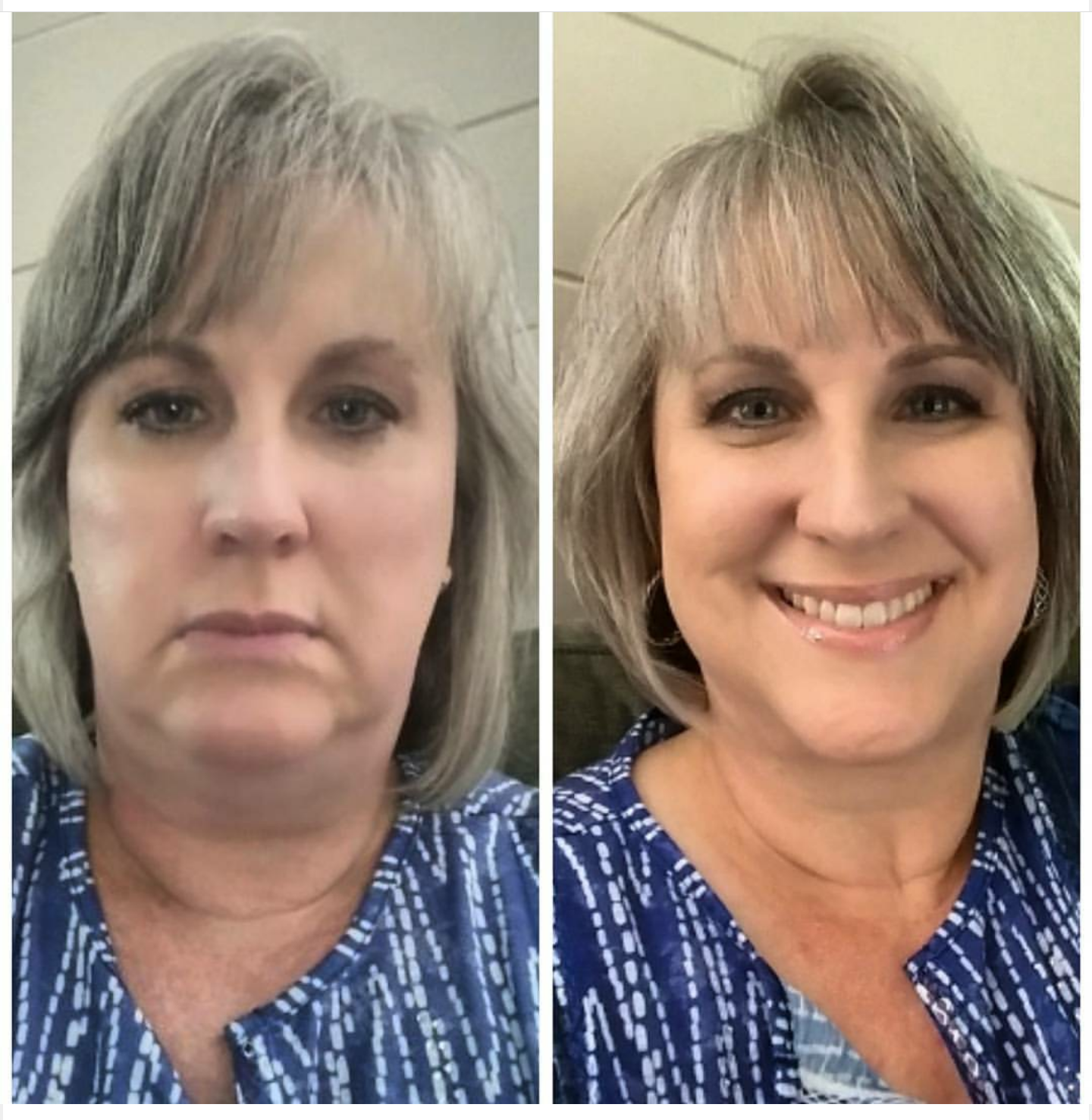 Life Of Kris Price Coolsculpting Of My Chin A Review