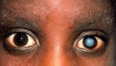 Cataract: Definition, Etiology, Patophysiology
