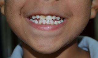بقع بنية على أسنان الأطفال
