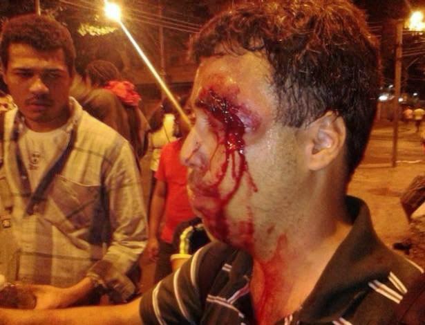 Professor ferido com bombas e a tiros no olho.