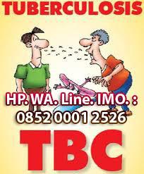 Obat Penyakit TBC paling ampuh, aman dan tanpa efeksamping