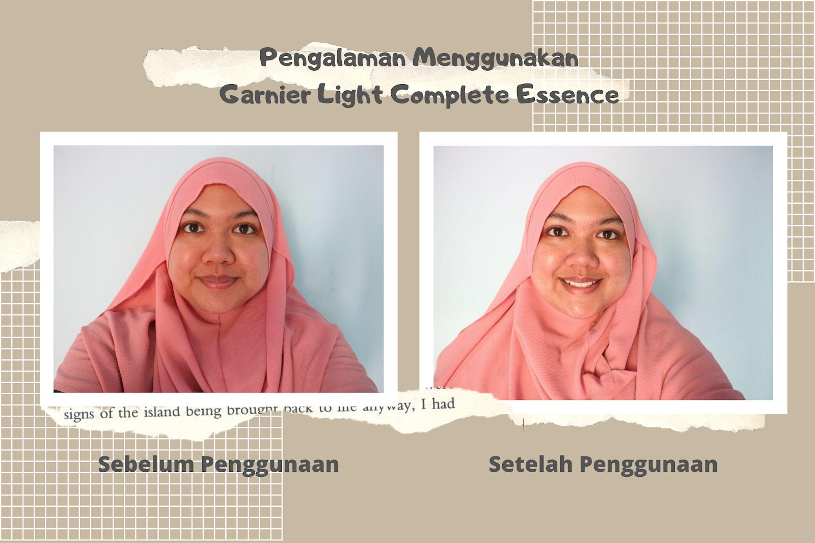 Sebelum dan Sesudah Penggunaan Garnier Light Complete Super Essence