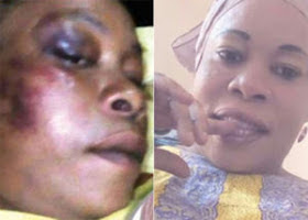 TANZANIAN FEMALE ARTIST BEATEN BY HER HUSBAND DIES IN HOSPITAL