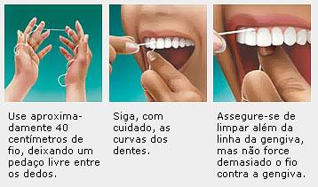 1f1038488 Como Passar Fio Dental