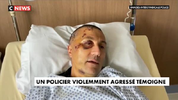 LE TÉMOIGNAGE CHOC D'UN POLICIER VIOLEMMENT AGRESSÉ