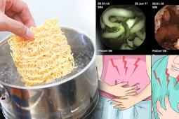 Suka Makan Mie Instan? Tonton Di Sini Apa Yang Terjadi Di Dalam Perut Anda Setelah Menyantapnya!