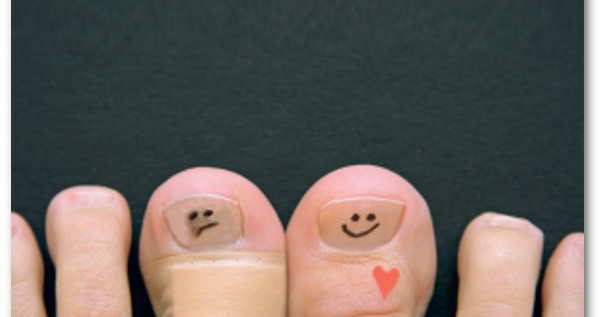 Cel mai bun tratament pentru ciuperca piciorului – micoza unghiei