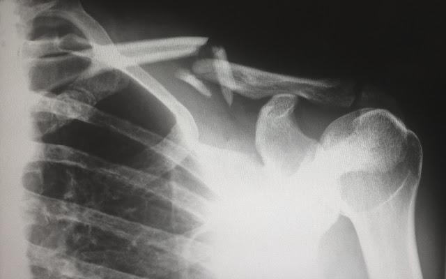 x-ray.Photo by Harlie Raethel on Unsplash