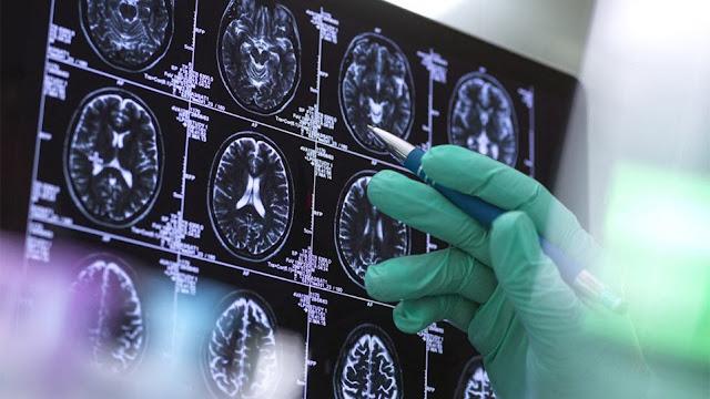 Εγκρίθηκε νέο φάρμακο για το Αλτσχάιμερ - Πολλοί θεωρούν ότι η θεραπεία δεν έχει αποδειχθεί ότι βοηθά στην επιβράδυνση της ασθένειας – Ο Αμερικανικός Οργανισμός Τροφίμων και Φαρμάκων έδωσε έγκριση σε σκεύασμα της Biogen Αλλαγή στα θεραπευτικά πρωτόκολλα συνιστά η έγκριση του Αμερικανικού Οργανισμού Τροφίμων και Φαρμάκων σε φάρμακο κατά του Αλτσχάιμερ. Το «πράσινο φως» δόθηκε μετά από πολύ συζήτηση και πολλές αμφισβητήσεις για το εάν η εγκεκριμένη θεραπεία έχει αποδειχθεί ότι βοηθά στην επιβράδυνση της ασθένειας που καταστρέφει τον εγκέφαλο.