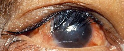 http://eyecaresoftgelharga.blogspot.com/