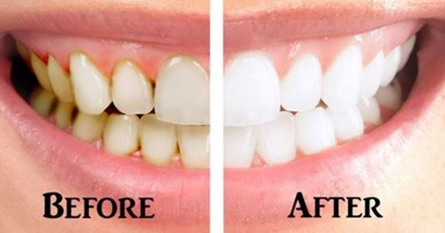 Can I Reverse Periodontal Disease Naturally