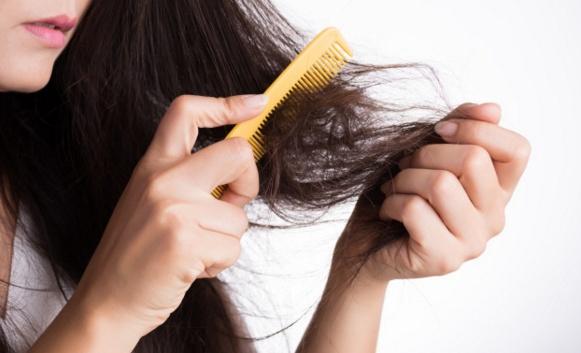 Cara Ampuh Atasi Rambut Rontok Yang Berlebihan Dengan Mudah