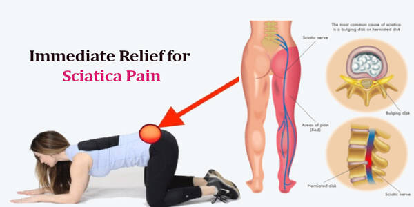 Sciatic Nerve Pain Relief: How to Treat Sciatica Nerve Pain Naturally