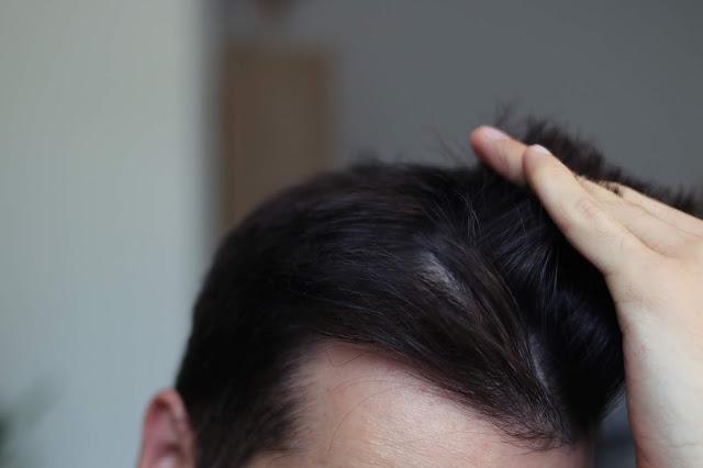 suchy szampon test