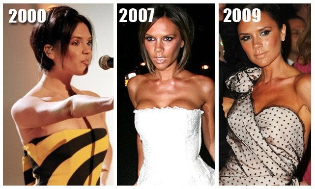 Plastic Surgery Before And After Victoria Beckham Plastic
