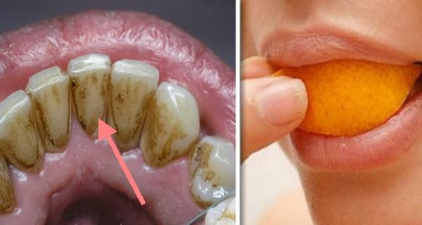 cum poti fi propriul tau dentist