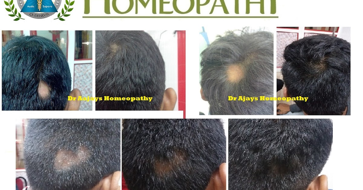 Hairstyles For Alopecia Areata : Dr ajays homeopathy : for hair & disease