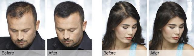 Mengobati kebotakan rambut pria dan wanita