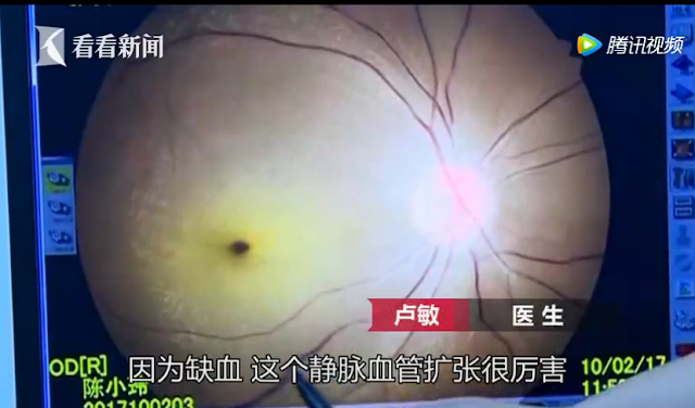 kondisi mata gadis yang mengalami buta setelah bermain game berjam-jam