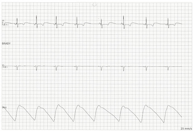 Float Nurse: Practice EKG Strips