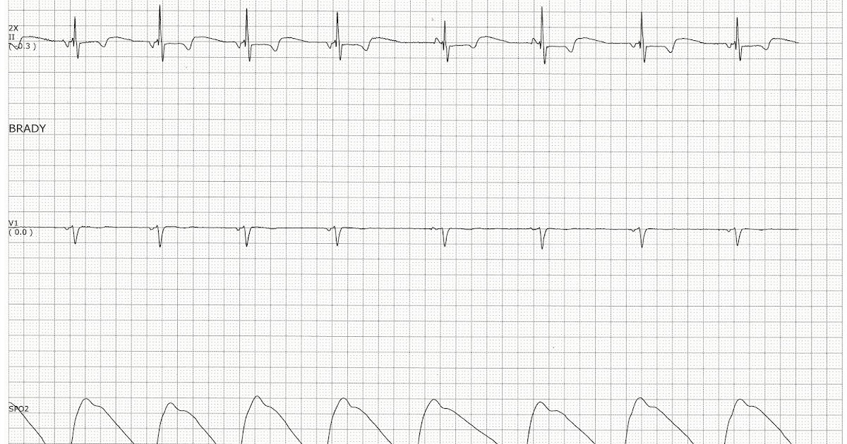 Float Nurse: Practice EKG Strips