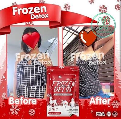 Gluta Frozen Detox 2 in 1