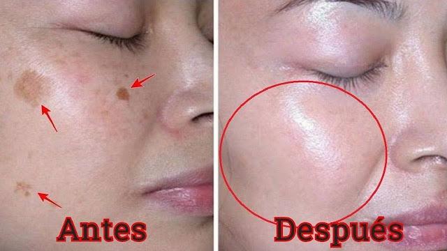 Elimina las manchas de la piel con esta crema facial nocturna