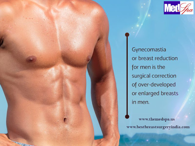 male breast reduction gynecomastia surgery in Delhi
