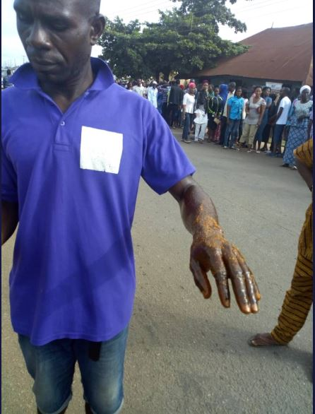 Ekiti Election: Party Agent Doused With Acid (Photos)