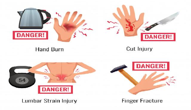 Cara mengobati luka bakar yang baik dan benar Di rumah