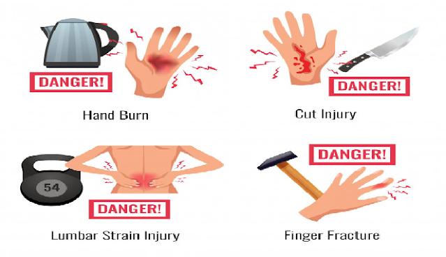 Cara menyembuhkan luka bakar dengan cepat
