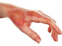 Mendapatkan obat luka bakar yang alami
