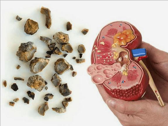 Solusi Sakit Batu disaluran kemih,prostat dan Batu Ginjal menurut Konsep Karnus