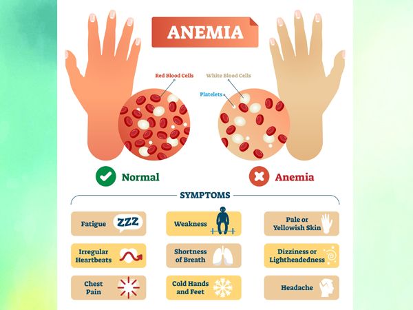 Anemia -iron Deficiency Symptoms