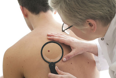 Cutaneous Melanoma Patients with Pre-existing Autoimmune Disease at Greater Risk of Immune-related Adverse Events