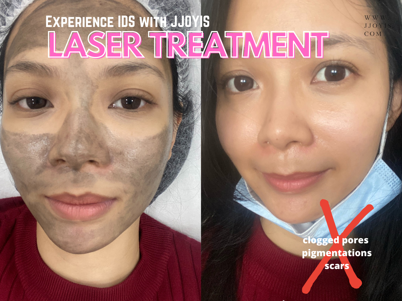 IDS review carbon laser before after