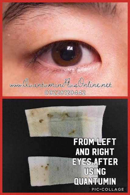 EYE IRRITATION QUANTUMIN PLUS