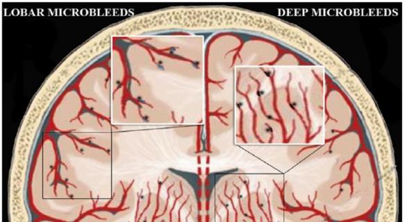 図:微小脳出血 皮質と深部