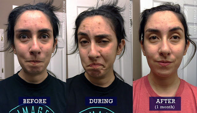 Prid vs Acne Patches Before & After / The Acne Experiment