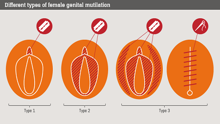 TYPES OF FGM